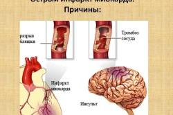 Причины острого инфаркта миокарда