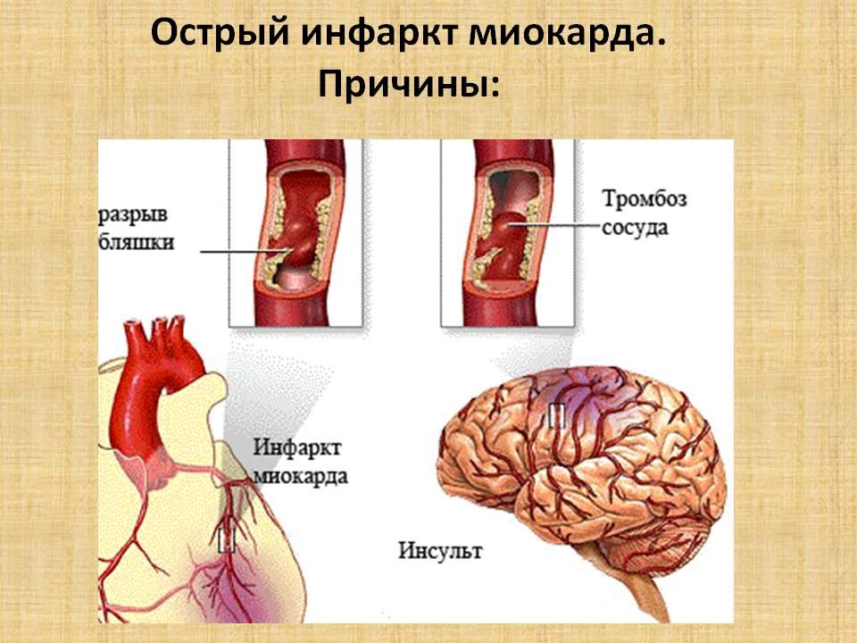 Острый инфаркт миокарда: последствия