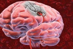 Отсутствие рефлексов на четвертой стадии инсульта головного мозга