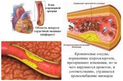 Инфаркт миокарда как следствие экстрасистолии сердца