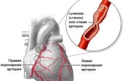 Боли в грудине как симптом стенокардии