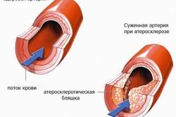Лечение атеросклероза сосудов головного мозга: препараты ...