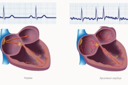 Аритмия сердца - причина инсульта