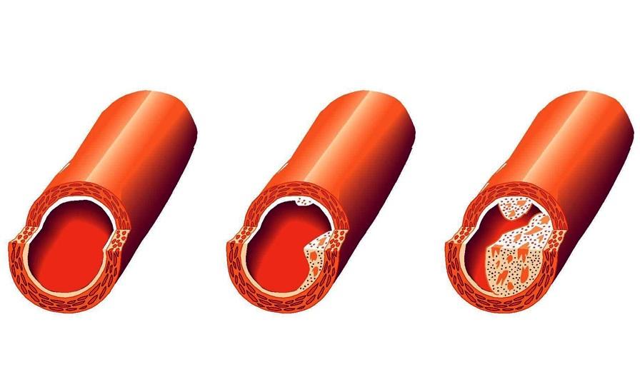 Лечение атеросклероза аорты сердца народными средствами