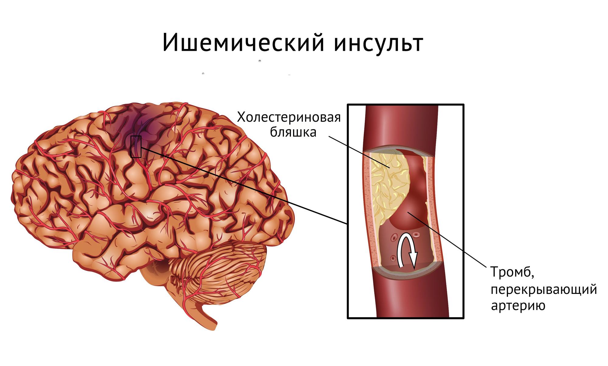 Ишемический инсульт: симптомы и последствия