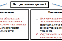 Методы лечения аритмий