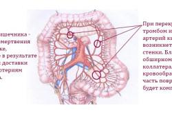 Схема инфаркта кишечника