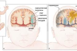 Ишемия головного мозга у новорожденного: лечение и последствия