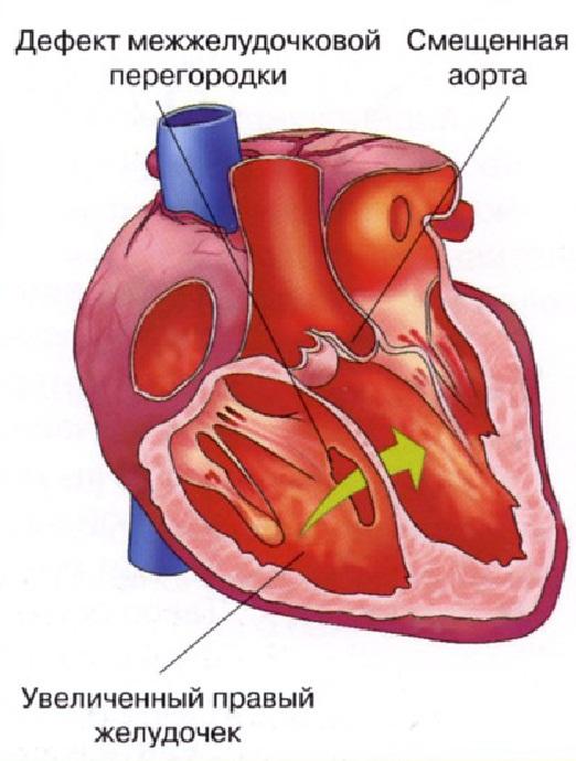 Признаки порока сердца у новорожденных: виды, причины и лечение