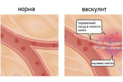 Васкулит - одна из причин стенокардии