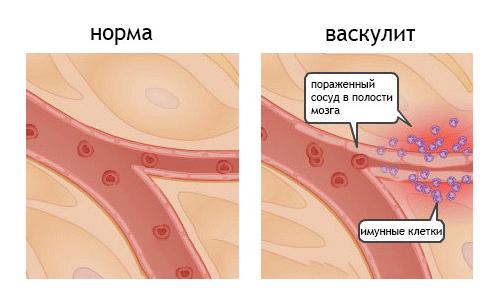 Геморрагический васкулит: причины, симптомы и лечение