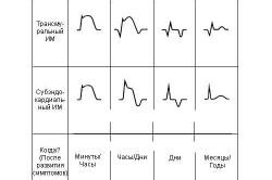 Таблица стадий инфаркта