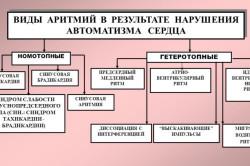 Виды аритмий в результате нарушения автоматизма сердца