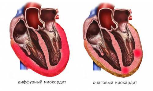 Миокардит: симптомы и лечение