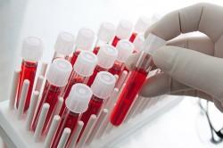 Анализ крови при атеросклерозе сосудов нижних конечностей