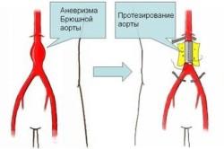 Схема протезирования аневризмы брюшной аорты