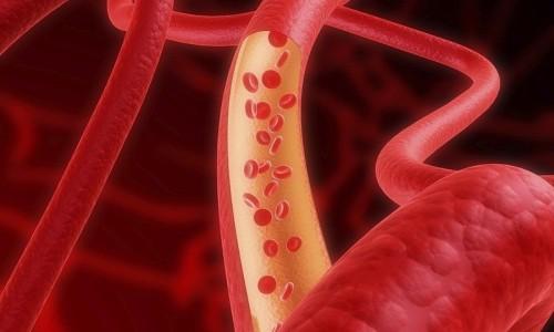Опасность аневризмы аорты
