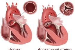 Схема стеноза аортального клапана