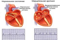 Схема мерцательной аритмии