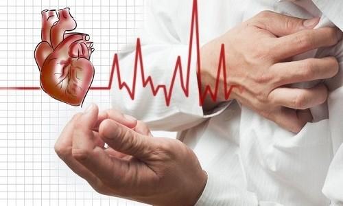 Проблема аритмии сердца