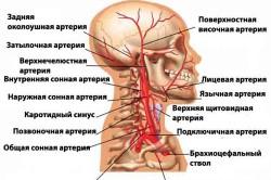 Схема сосудов головного мозга