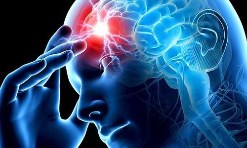 Проблема ишемического инсульта