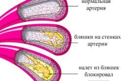 Схема церебрального атеросклероза сосудов головного мозга