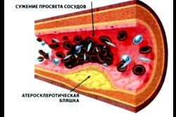 Атеросклероз - причина развития аневризмы брюшной аорты