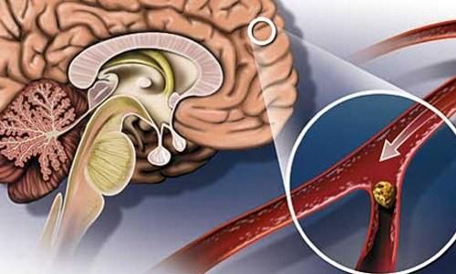 Проблема атеросклероза головного мозга