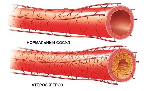 Симптоматика, причины и методы лечения при окклюзии артерий нижних конечностей