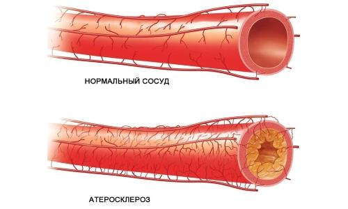 анализ на холестерин лпвп и лпнп