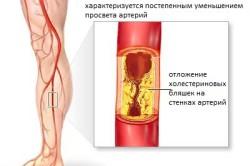 Атеросклероз - отложение бляшек холестерина на стенках сосудов