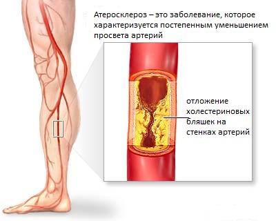 холестерин липопротеинов высокой плотности повышен