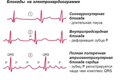 Степени блокады сердца на экг