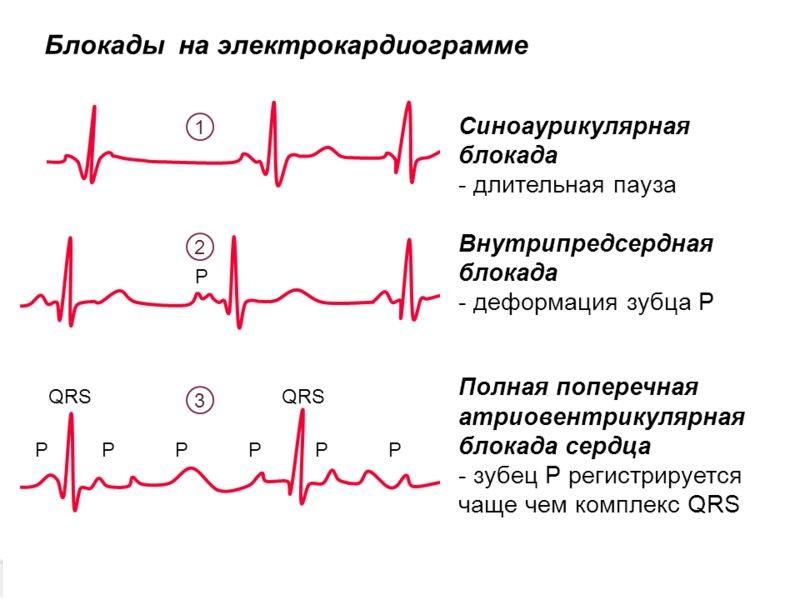 Блокада сердца: причины, симптомы и лечение