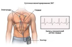 Холтеровский мониторинг работы сердца для диагностики блокады