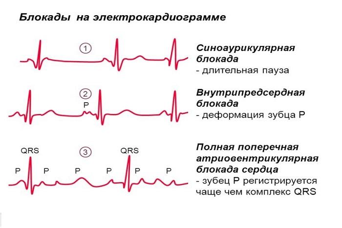 Чем опасна блокада сердца