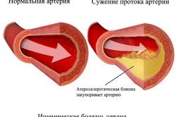 Схема ишемической болезни сердца