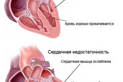 Схема хронической сердечной недостаточности