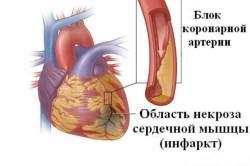 Схема инфаркта