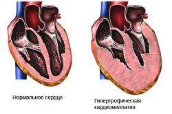 Схема кардиомиопатии