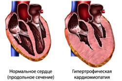 Схема гипертрофической кардиомиопатии