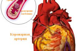 Закрытая артерия сердца - причина сердечного приступа