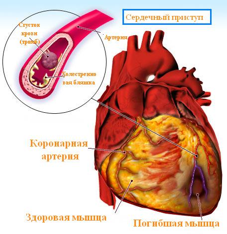 Сердечный приступ: причины, симптомы и первые признаки