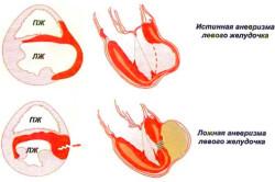 Аневризма сердца - причина инфаркта миокарда