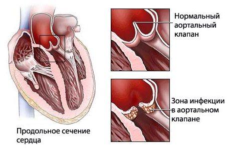 Ревматизм сердца: симптомы и лечение