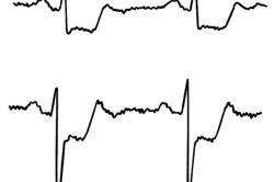 ЭКГ при стенокардии