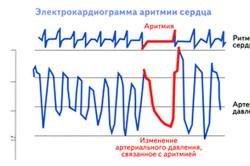 Электрокардиограмма аритмии сердца