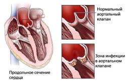 Схема эндокардита