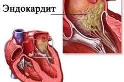 Эндокардит при гипертрофической кардиомиопатии